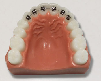 Lingual Braces - Petaluma Orthodontics
